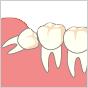 親知らずの抜歯の術前診査