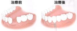 歯を一本失った場合(治療前・治療後)