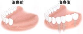 歯を何本か失った場合(治療前・治療後)