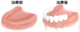歯をすべて失った場合(治療前・治療後)