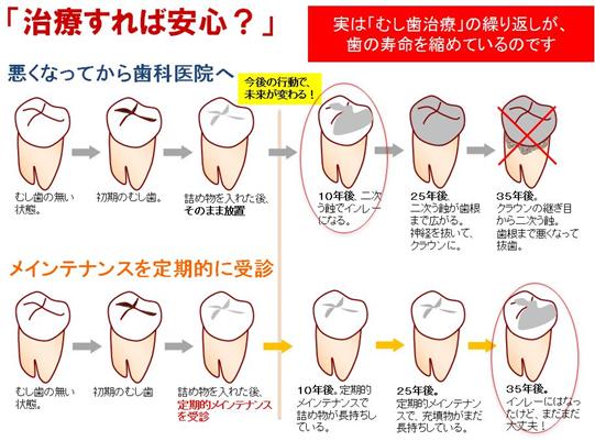 実は「むし歯治療」の繰り返しが、歯の寿命を縮めているのです